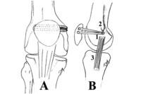 knee-cap-dislocation